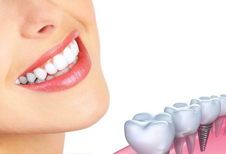 Bright white smile next to an illustration of a dental implant provided at Grove Dentistry