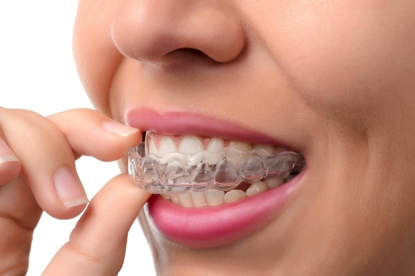 Closeup of Invisalign treatment you can find at Grove Dentistry in Burlington, Ontario