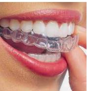 Invisalign Aligner - Dentistry at The Grove - Burlington Dentist